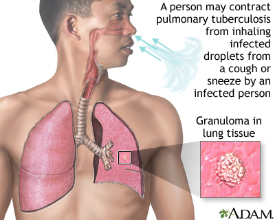 Pulmonary tuberculosis (TB)